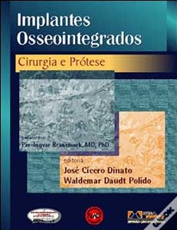 Wook.pt - Implantes Osseointegrados